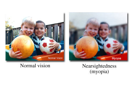 What it's Like to See With Normal Vision vs Having Nearsightedness